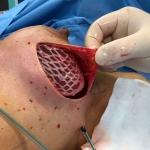 Pionierski zabieg w ŚCO: implanty piersi w kolagenowych siatkach